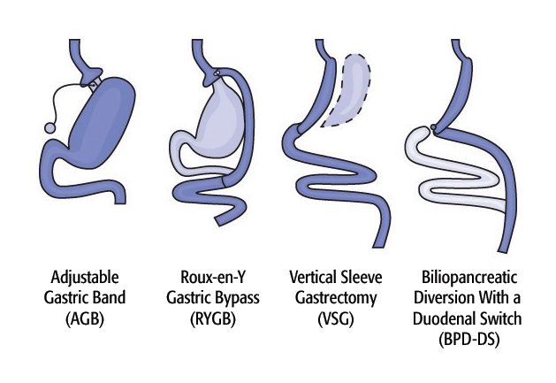 Diagram of Surgical Options for Weight Loss