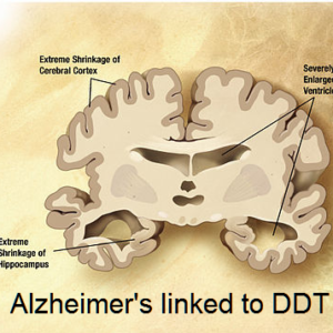 Alzheimer linked to DDT