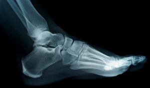 ankle-x-ray