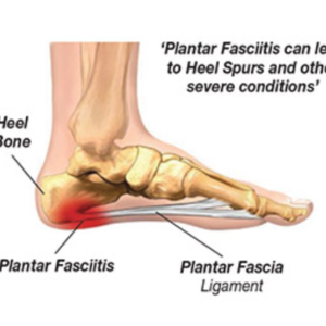 diagram of foot showing plantar fasciitis and heel pain
